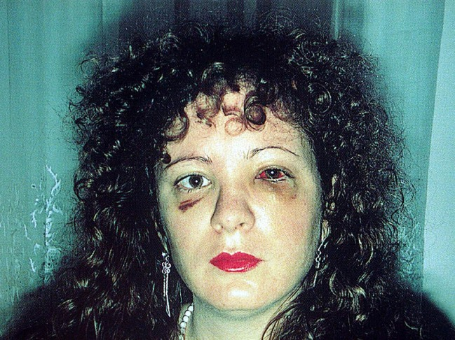 goldin-nan-nan-one-month-after-being-battered-ny-1984.jpg